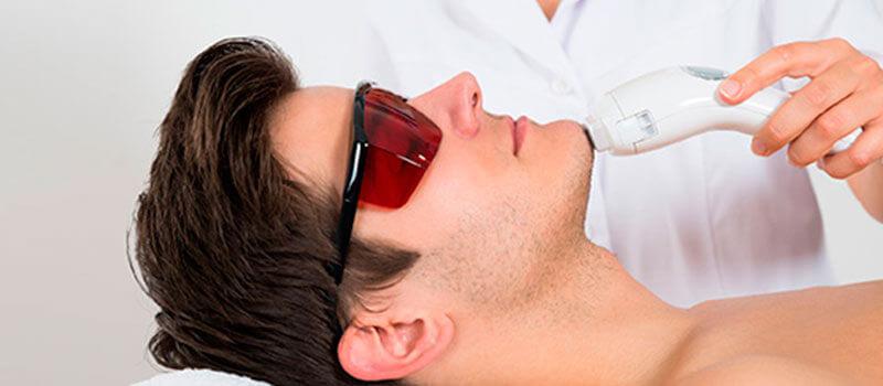 Tratamentos a laser para homens e mulheres: existe diferença?
