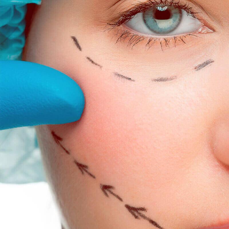 Cirúrgicos